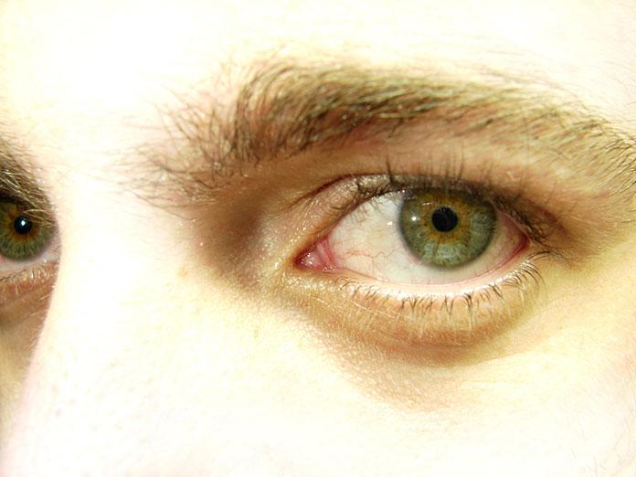 Dlaczego warto wybierać sztuczne łzy bez konserwantów